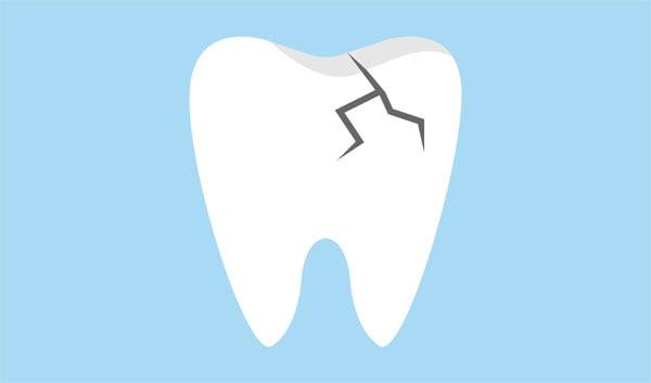 spricka i tanden illustration