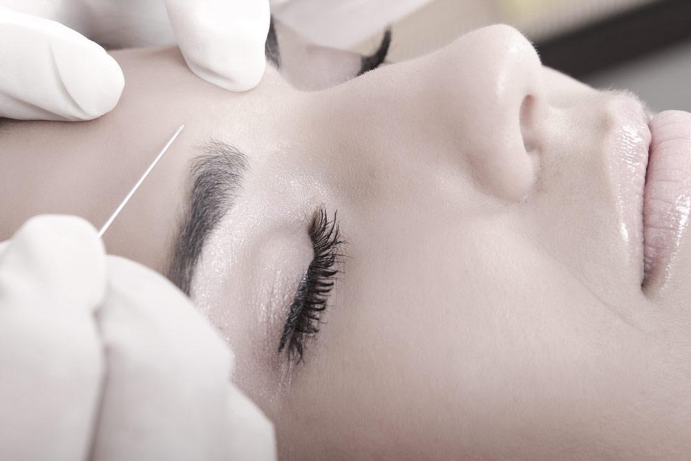 Hur går botoxbehandlingen till?