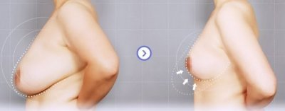 bröstlyft utan operation