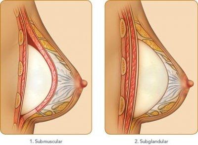 Brustvergrsserung Risiken Beschdigung, Platzen