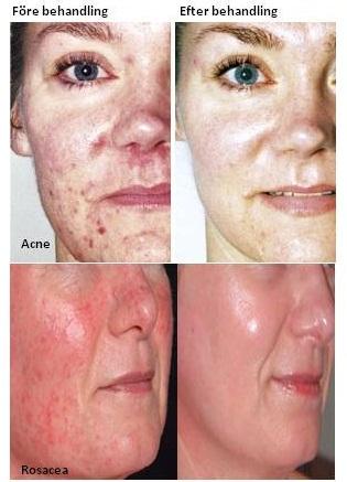 fore-och-efter-acne-rosacea.jpg