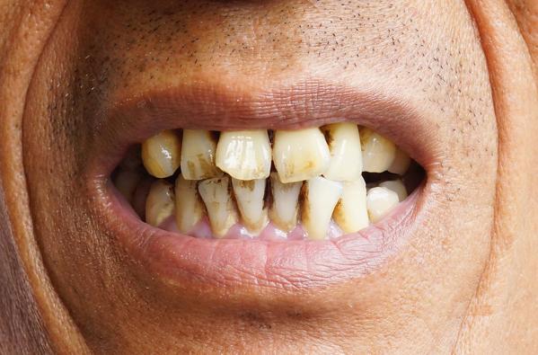 Rökare med fläckar på tänderna