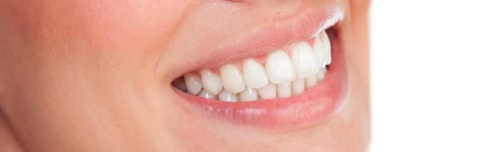 fläckar på tänderna