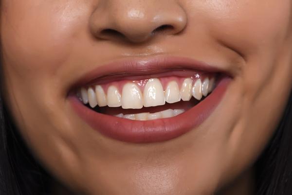 Kvinna med friska tänder