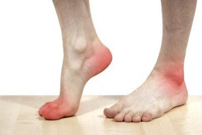 ont i foten utan anledning