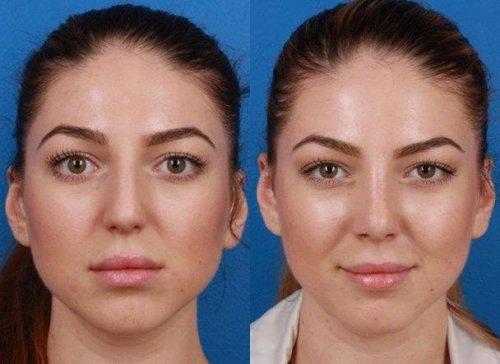 کلینیک زیبایی | جراحی بینی | عمل بینی در تهران