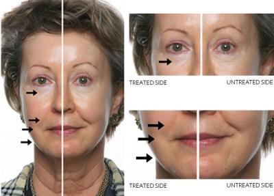 ansiktsbehandling.jpg