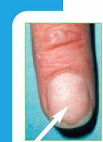 hål i nageln