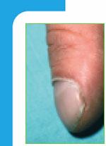 svart streck på nageln