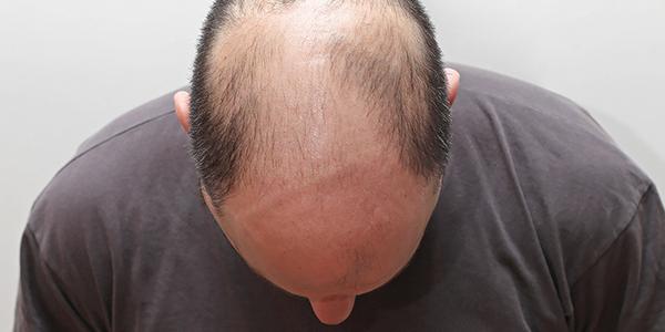 hårtransplantation i stockholm