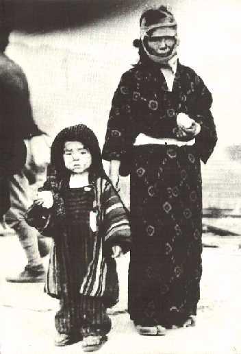 fotohiroshimasobrevivientes.jpg (19515 bytes)