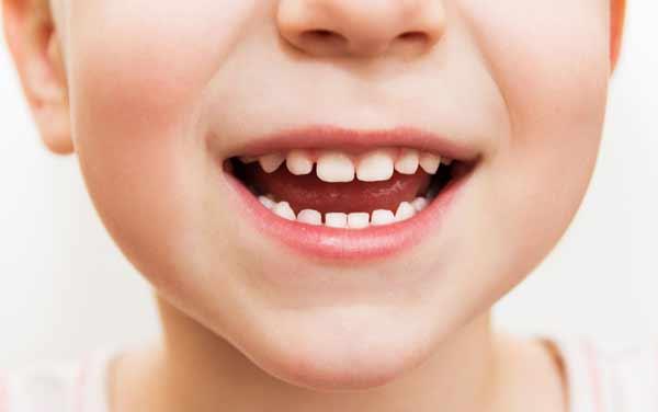 barn med porösa tänder