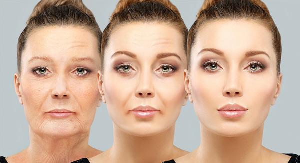 äldre kvinna som genomgått ansiktslyft – före och efter