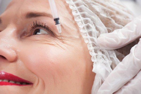 botox i ansiktet