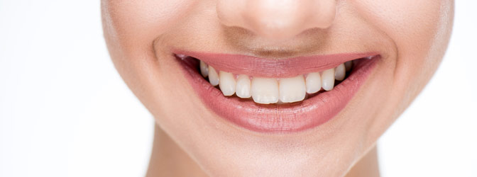 Botox mot Gummy Smile
