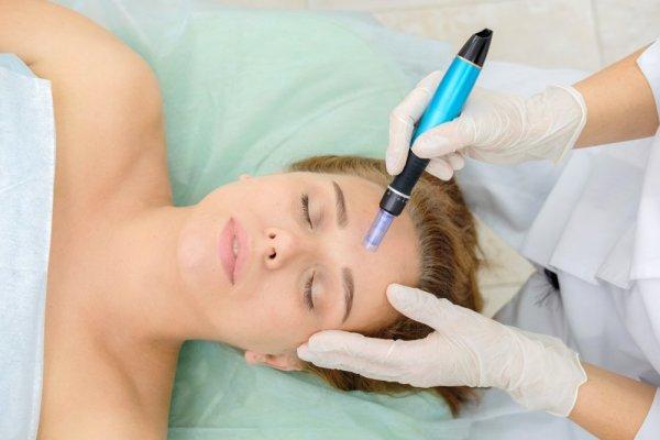 Kvinna får behandling med microneedling i ansiktet