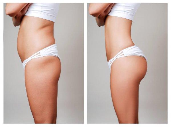 Före- och efterbilder på mage och stuss