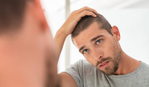 kan man få tillbaka håret utan behandling?