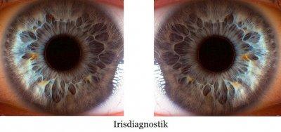 irisdiagnostik.jpg