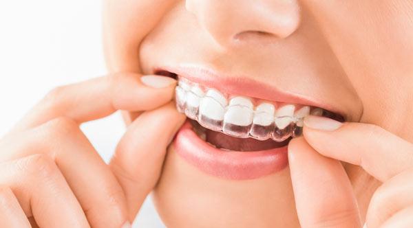 Invisalign, Tandreglering i Malmö, kvinna provar tandställning