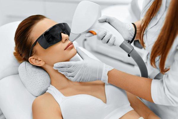 Laserbehandling för hårborttagning i ansiktet