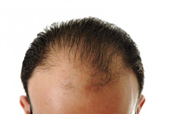 tunnhårig frisyr man
