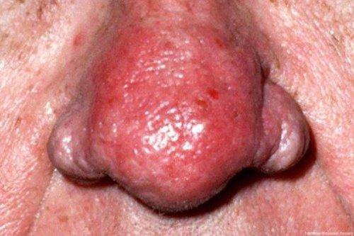 rhinophyma.jpg