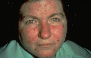 acne-rosacea-woman.jpg