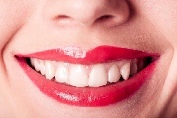 bleka tänder
