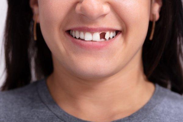 Fixa tänderna