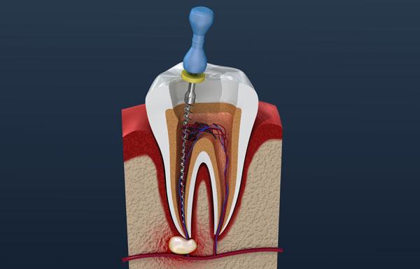 rotyllning av tand