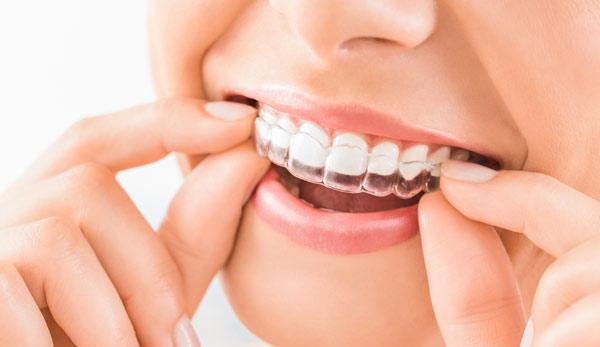 ortodonti tandställning
