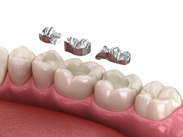 amalgam i lagningar för tänderna kan leda till amalgamförgiftning