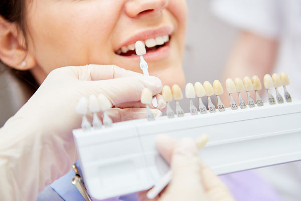 Tandblekning Stockholm - Solna Dental - färgprov