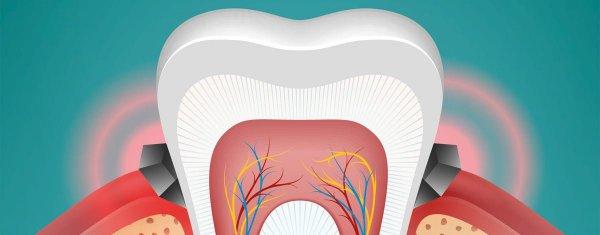 inflammerat tandkött