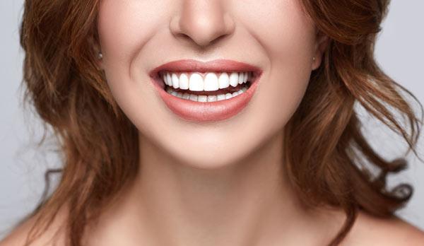 kvinna efter tandblekning