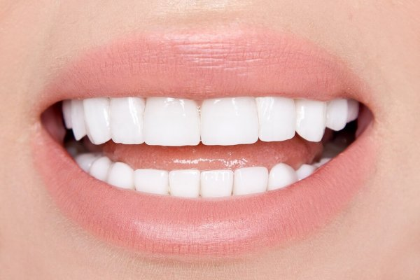 Leende med vita tänder