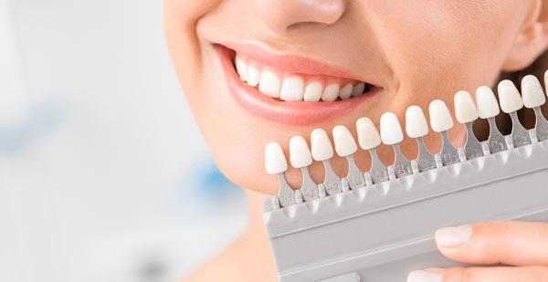 tandimplantat med olika nyanser på tänder