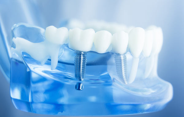 tandimplantat hos tandläkare i Sundbyberg
