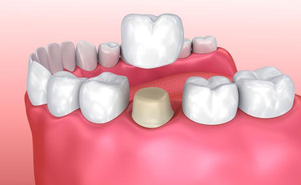 krona på skadad tand