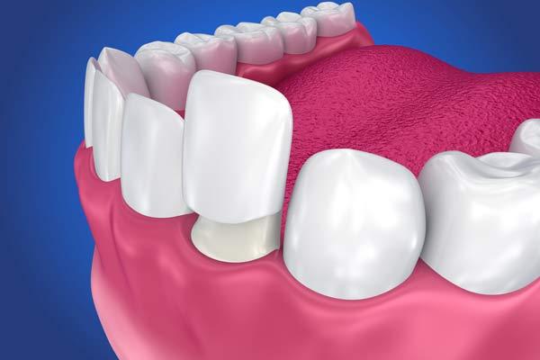 porslinskrona på skadad tand