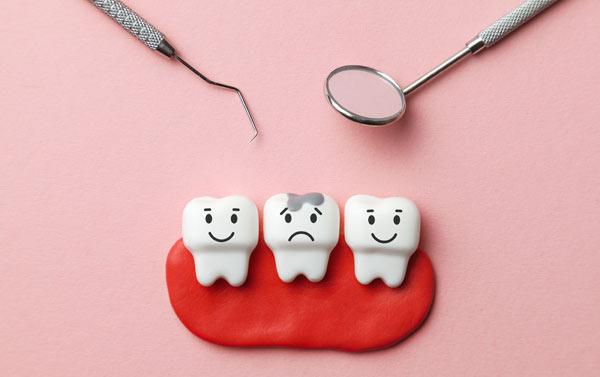 karies – hål i tänderna