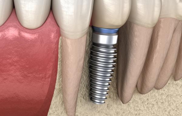 titanskruv och krona i porslin är material för tandimplantat