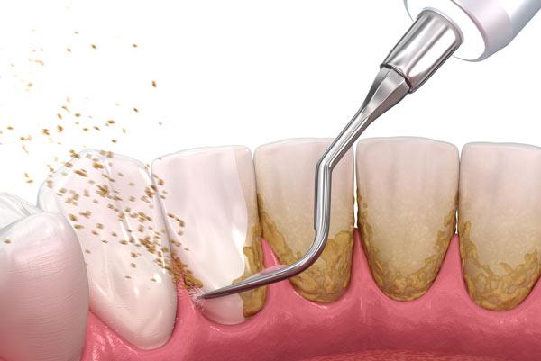 ta bort tandsten