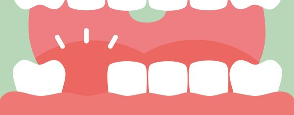 utslagen tand