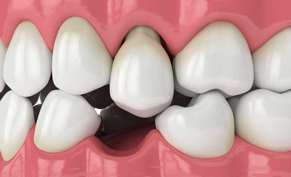 tandlossning, parodontit