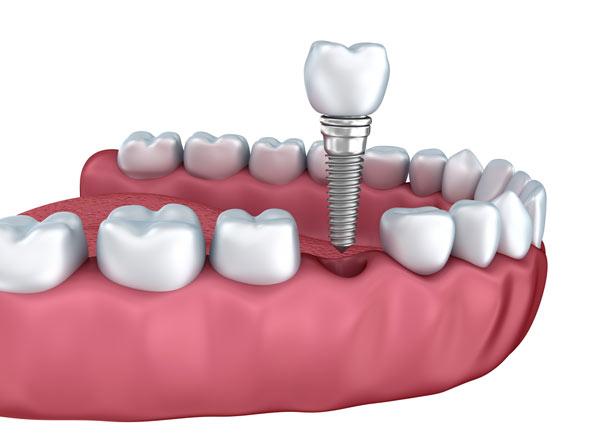 tandkirurgi titanskruv