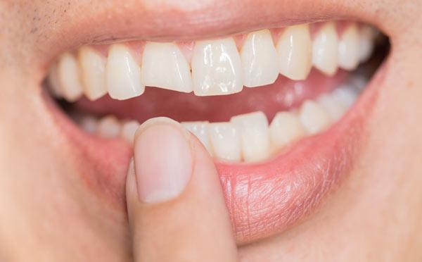 sprickor eller skador på tänderna
