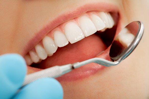 hela friska tänder