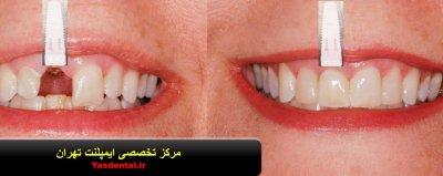 خدمات دندانپزشکی , ایمپلنت , لمینت , بلچینگ و لیمونیرز